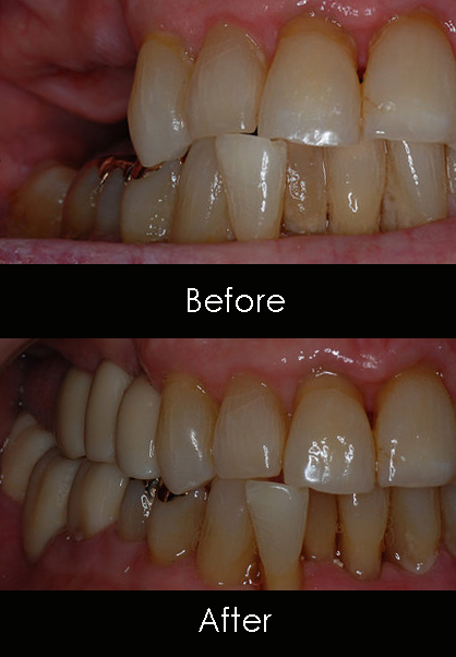Dental Implant before and after Family Dentist of Palm Beach | Palm Beach FL